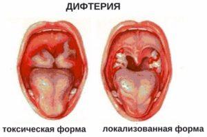 причины токсической формы миокардита