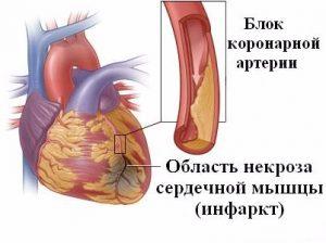 причины рубцов на сердце