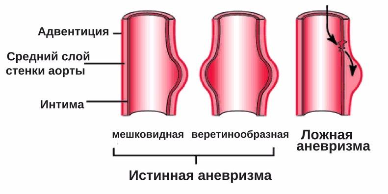типы аневризм аорты