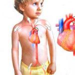 причины и симптомы ВПС коартктации аорты
