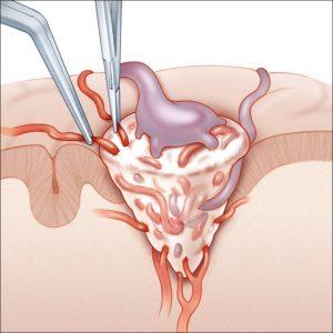 операция при артеривенозной мальформации