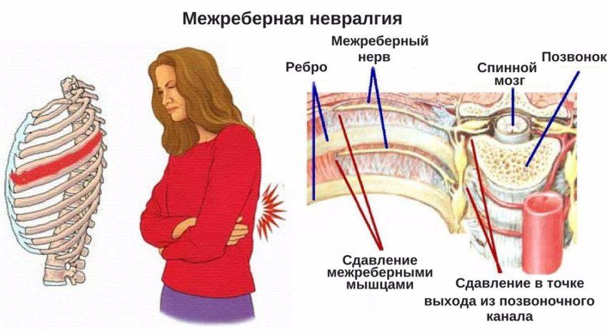 причины острой боли за грудиной