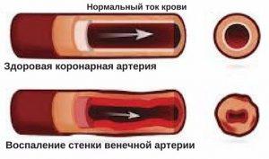 воспаление венечной артерии