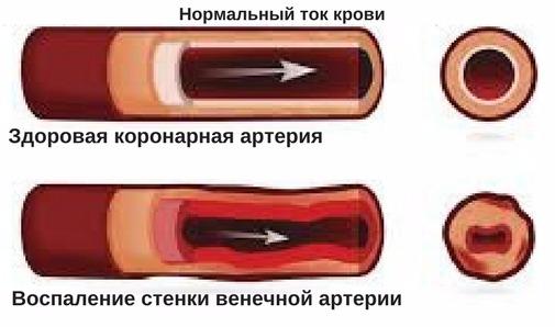 симптомы и лечение миокардита абрамова