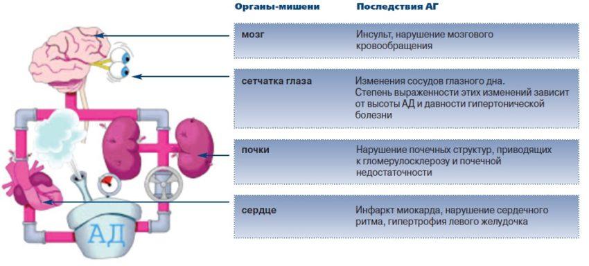 последствия гипертонического криза