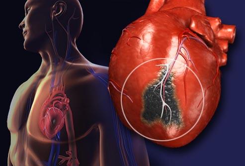 диагностика и лечение постинфаркный кардиосклероз