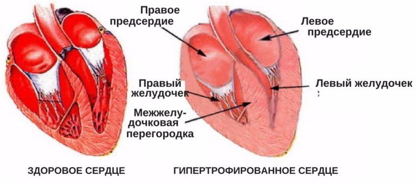 гипертрофированное сердце при чрезмерных физических нагрузках