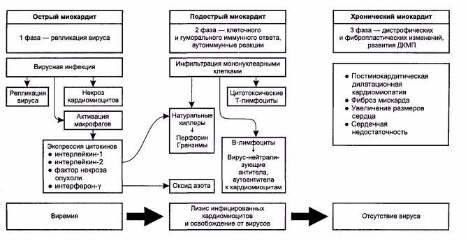 3 стадии вирусного микардита