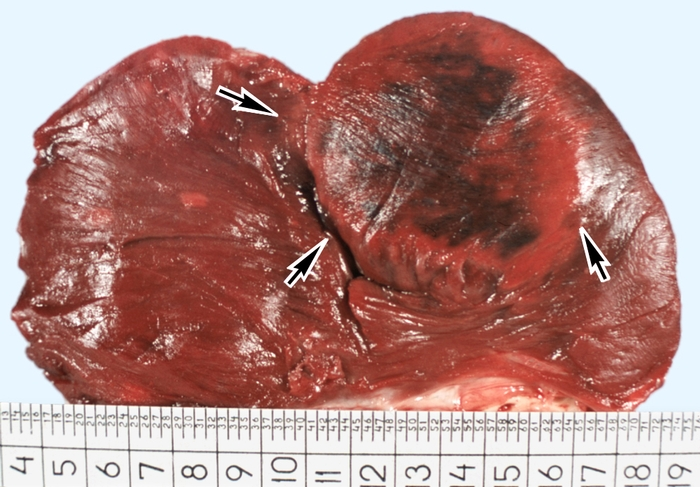 симптомы постинфаркного кардиосклероза