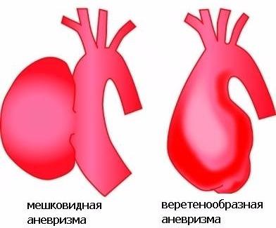 классификация аневризмы грудного отдела аорты