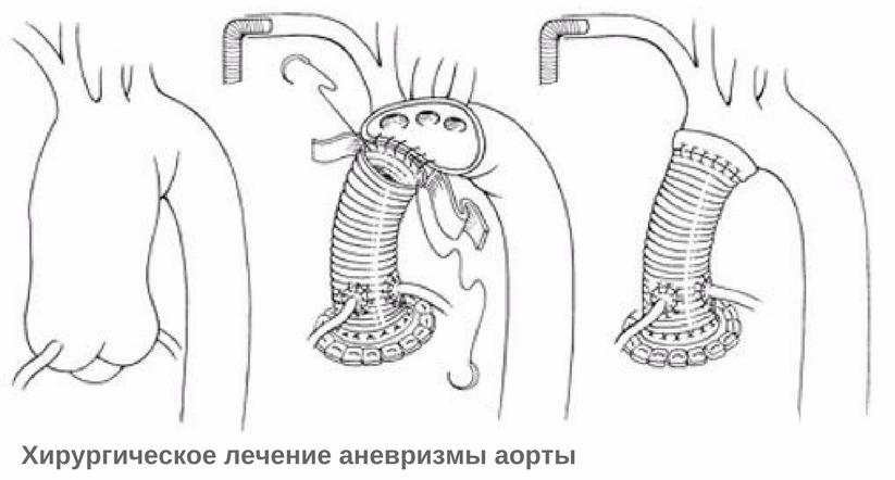 лечение аневризмы аорты