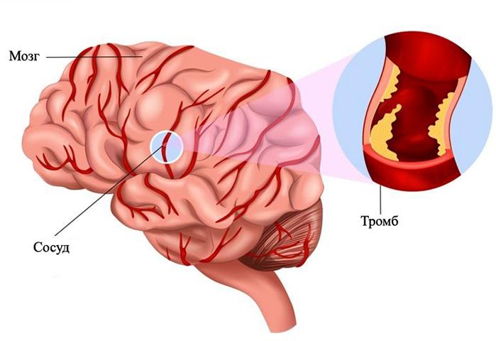 Тромбоз мозговых вен