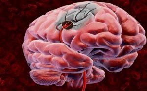 Тромбоз мозговых синусов
