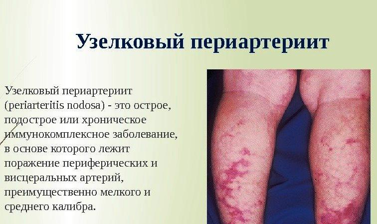 Узелковый периартериит