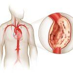 Воспаление аорты