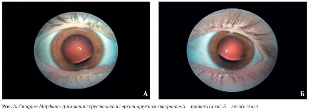 глазное дно при синдроме