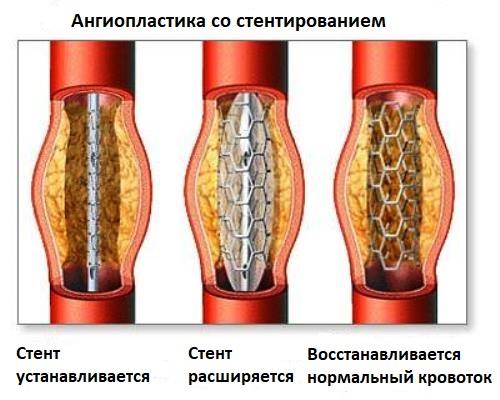 Ангиопластика со стентированием