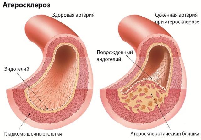 Атеросклероз как причина развития гипертонической энцефалопатии