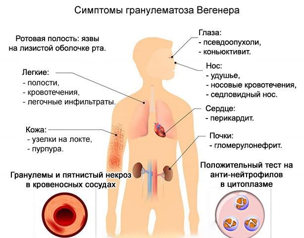 Симптомы гранулематоза Вегенера