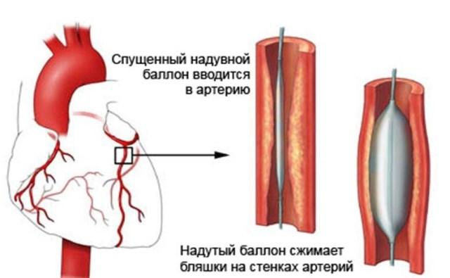 Балонная ангиопластика