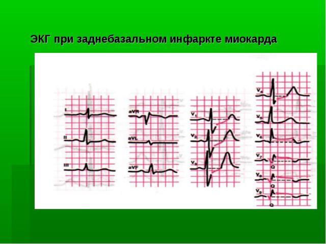 ЭКГ при заднебазальном инфаркте