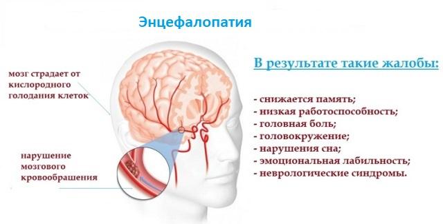 Гипертоническая энцефалопатия