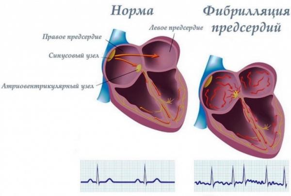 Фибрилляция предсердий как осложнение комбинированного аортально-митрального порока сердца