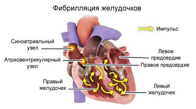 Фибрилляция желудочков как следствие гипертрофии левого желудочка