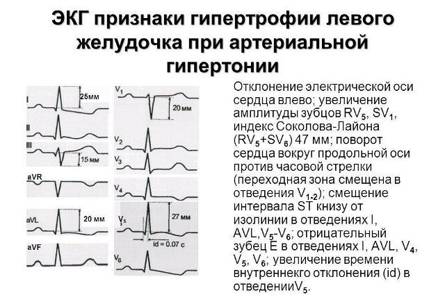 Гипертрофия левого желудочка на ЭКГ