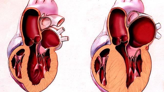 Гипертрофия левого желудочка при злокачественной гипертензии