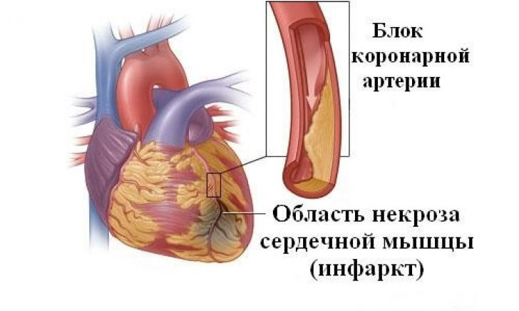 Гепарин при инфаркте миокарда