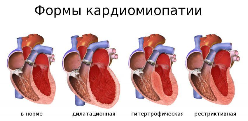 Формы кардиомиопатии
