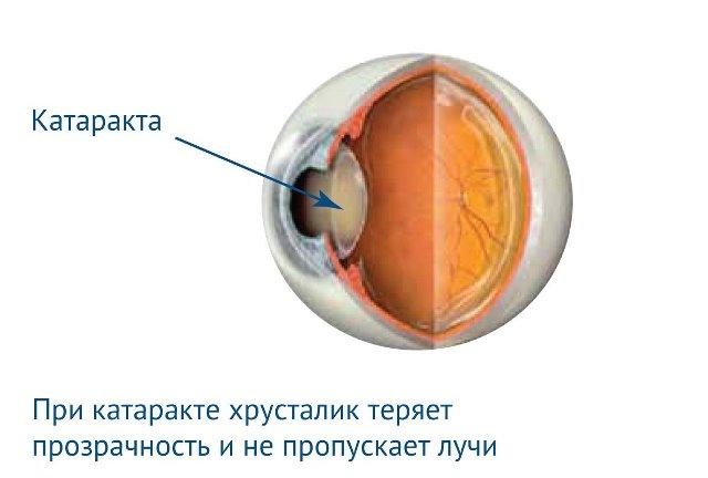 Катаракта как осложнение ретинопатии новорожденных