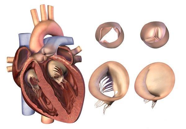 Комбинированный порок сердца