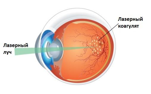 Лазерная коагуляция сетчатки глаз при ретинопатии