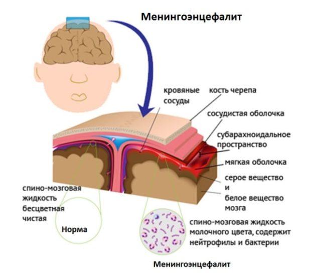 Мениногоэнцефалит как следствие болезни Бехчета