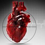 Осложнения инфаркта миокарда