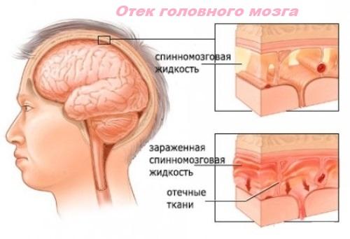 Отек головного мозга как следствие острой энцефалопатии