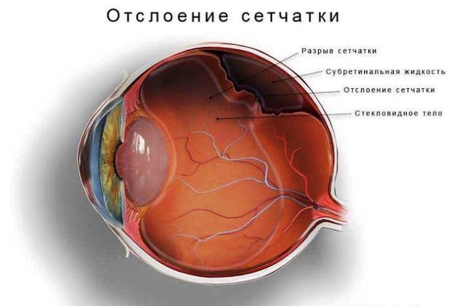Отслоение сетчатки как следствие гипертонической ретинопатии