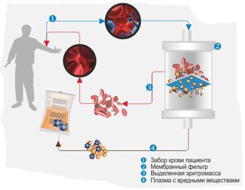 Плазмаферез при лечении васкулита