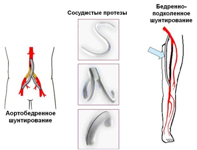 сосудистые протезы