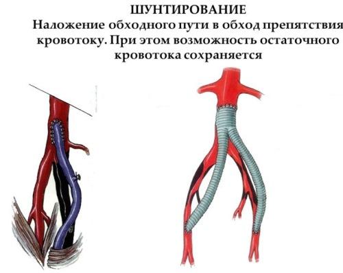 Шунтирование при внутричерепном давлении