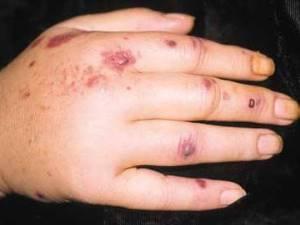 Симптомы васкулита на руке