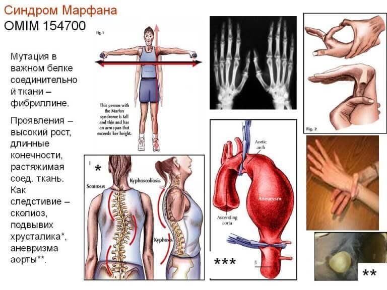 Причины синдрома Марфана