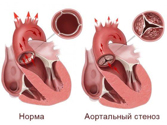 Стеноз аорты при синдроме Марфана