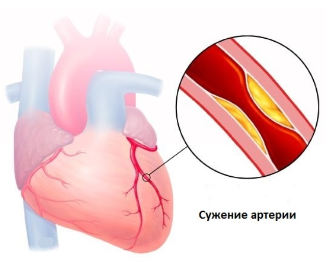Сужение артерии при болезни Такаясу
