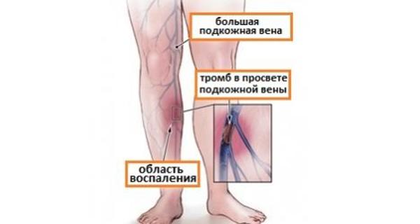 Образование тромбов при начале развития облитерирующего тромбангиита