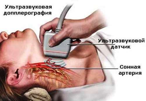 УЗИ сосудов при диагностике энцефалопатии