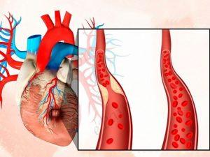 Заднебазальный инфаркт