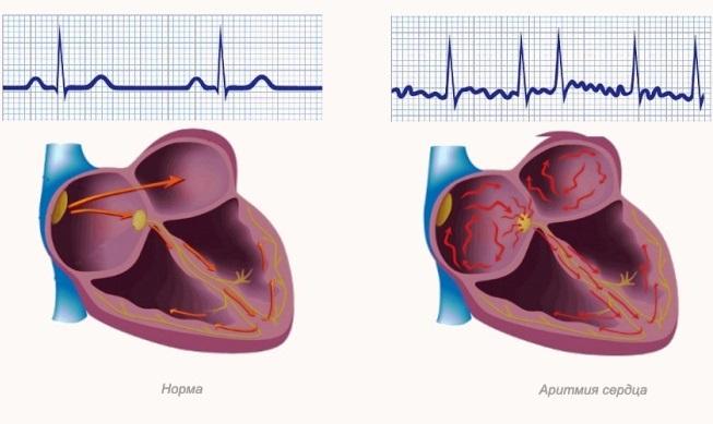 Что такое аритмия сердца